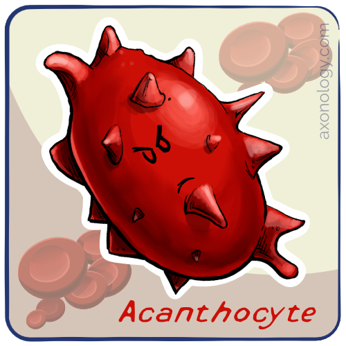 acanthocyte